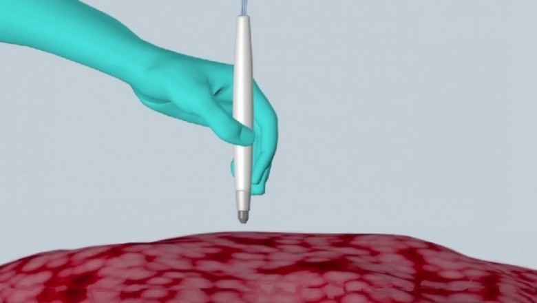 New Pen Device Can Detect Cancer in Just 10 Seconds with Great Accuracy