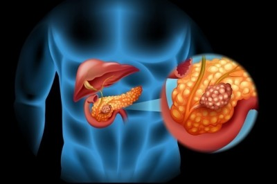 'Tumor suppressor gene' may fight against pancreatic cancer