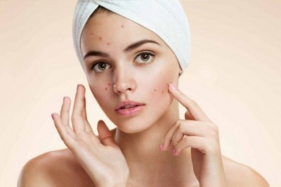 Acne may be a blessing for younger people in their life