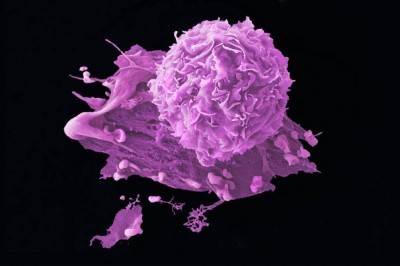 Scientists have invented 3D structure of a key cancer molecule