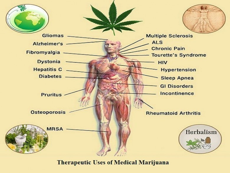 an introduction to the use of marijuana for medicinal purposes Pregnant women or women contemplating pregnancy should be encouraged to discontinue use of marijuana for medicinal purposes in favor of an alternative therapy introduction cannabis sativa (marijuana) is the illicit drug most commonly used during pregnancy the self-reported prevalence of marijuana use during.