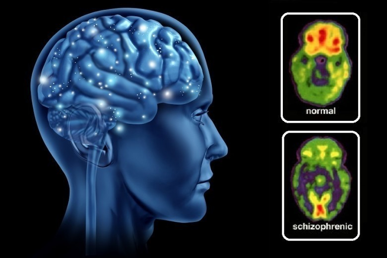 Schizophrenia is an unwanted side effect of complex
